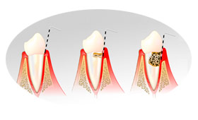 04-servicos-periodontia