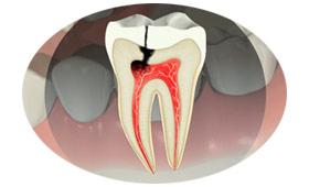 05-servicos-endodontia