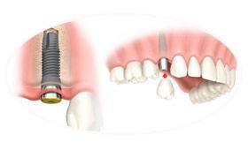 06-servicos-implantodontia