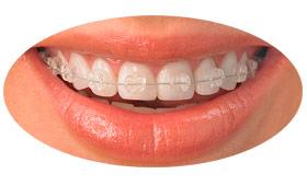 09-servicos-ortodontia